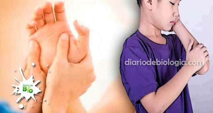 reumatismo no sangue febre reumática