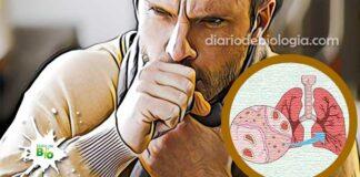 tosse seca constante irritativa persistente