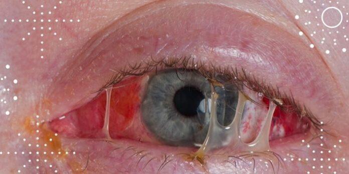 Causas comuns da inflamação no olho