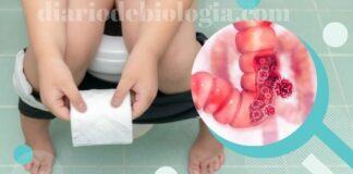 Sintomas de câncer no intestino