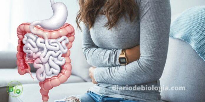 DOENÇA DE CROHN causas, sintomas, diagnóstico e tratamentos