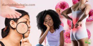 Excesso de açúcar na alimentação: Conheça os sinais de que você está comendo muito açúcar